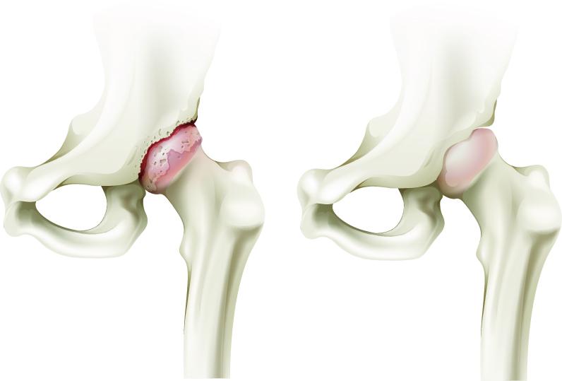 artroza tratamentul artritei articulației șoldului