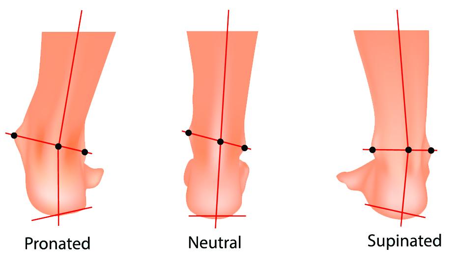cum să tratezi un mușchi articular al piciorului)