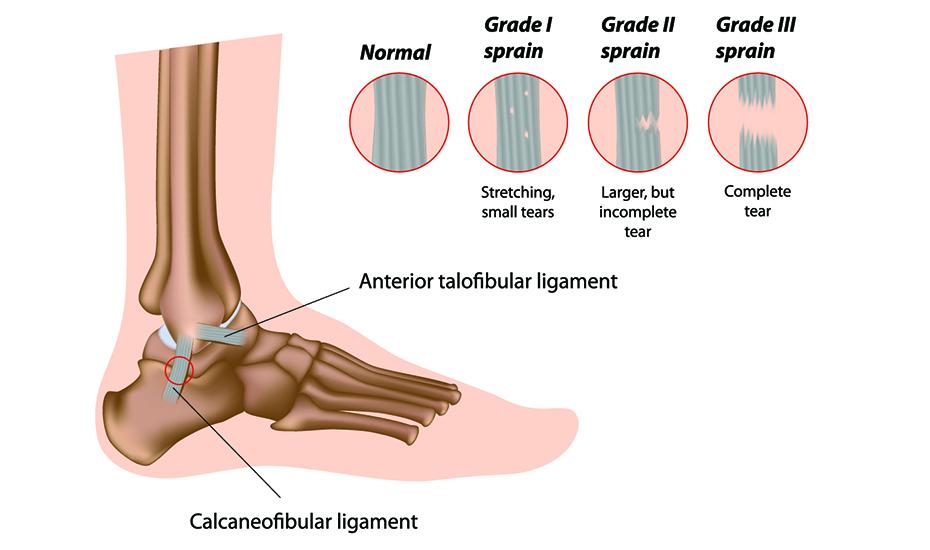 ruperea ligamentului deltoid al tratamentului articulației gleznei)